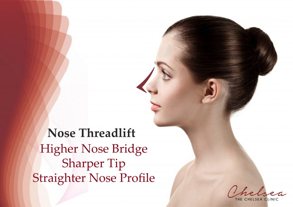 Nose Threadlift The Chelsea Clinic