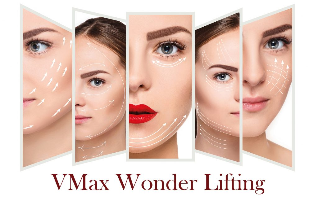 VMax Wonder Lifting | The Chelsea Clinic