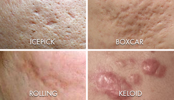 Rejuran Review | Rejuran Price | The Chelsea Clinic  |Acne Scar Types